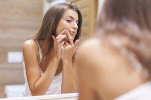 ¿Tienes una cita y quieres deshacerte de una espinilla? Aprende a quitarlas sin maltratar tu rostro